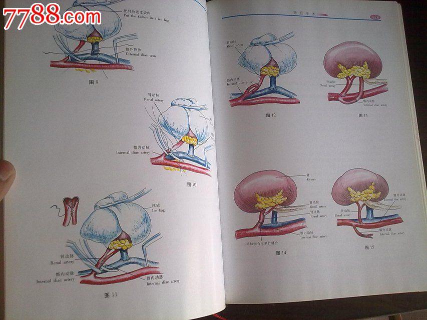 实用泌尿外科手术彩色图谱